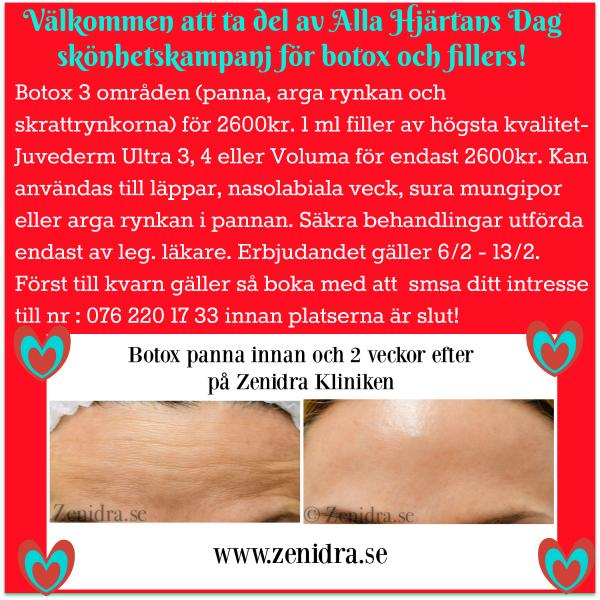 Botox Fillers erbjudande Malmö